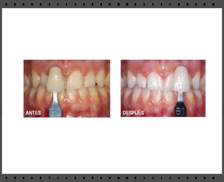 Blanqueamiento dental, Dientes blancos